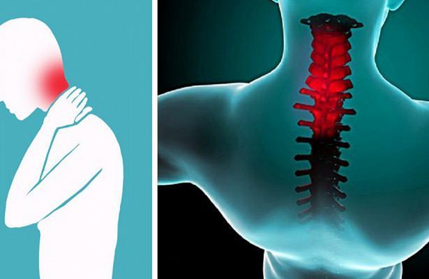 Как избавиться от ригидности затылочных мышц?